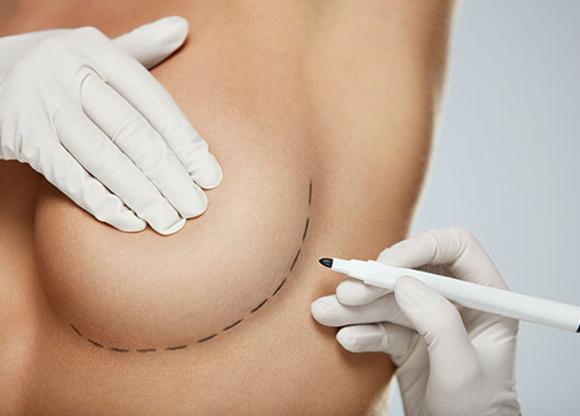 surgical pocedures